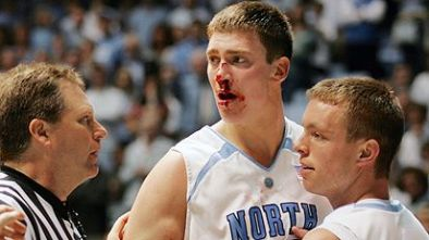 hansbrough_bloody.jpg